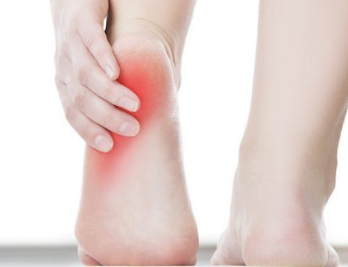 Home Treatments for Plantar Fasciitis